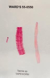 Tapeworm (Taenia sp.)